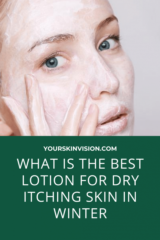 What is the Best Lotion for Dry Itching Skin in winter
