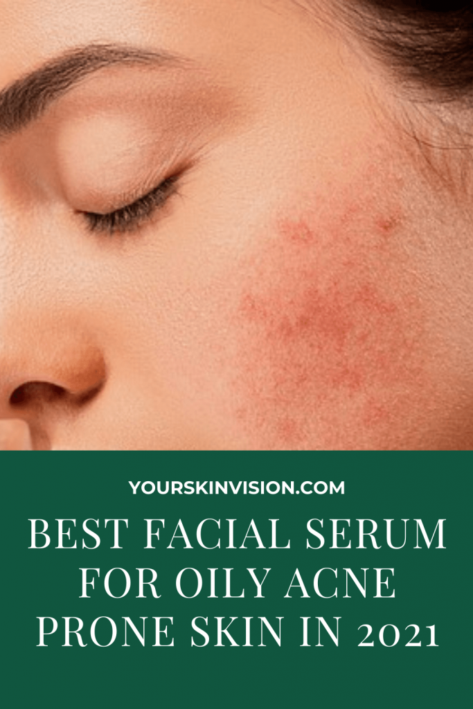 BEST FACIAL SERUM FOR OILY ACNE PRONE SKIN