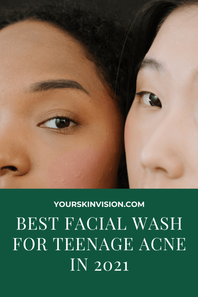 best facial wash for teenage acne in 2021