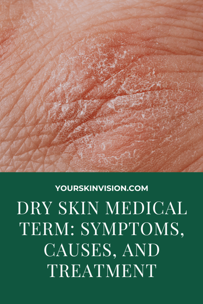 Dry Skin Medical Term Symptoms, Causes, And Treatment